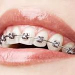 Orthodontist Bundoora